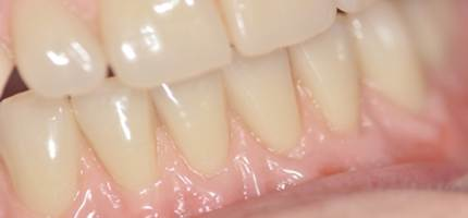 Quality complete dentures can offer amazing natural results from skilled practitioners
