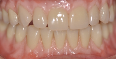 These real looking dentures incorporate gingival gum tones to add a realistic, natural looking appearance, Burnside Denture Clinic - Natural denture experts